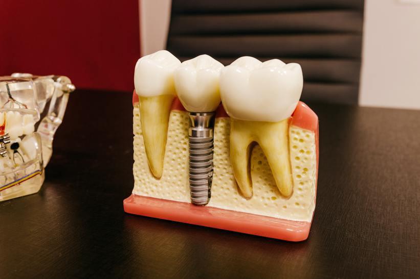 Implants dentaires, les meilleures cliniques dentaires pour les patients français